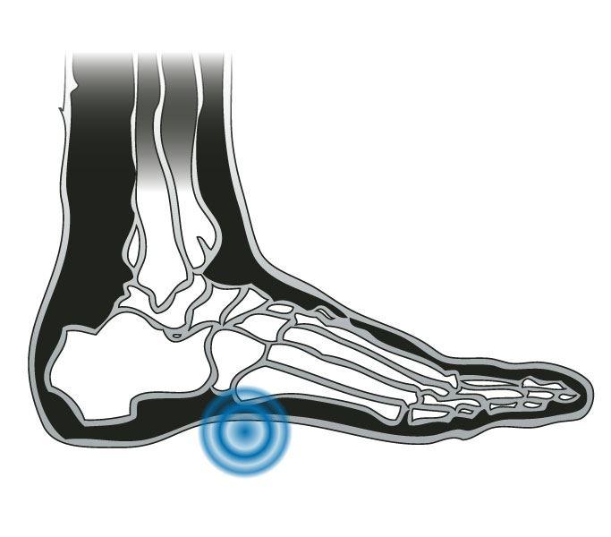 4402c1827c Airplus Mens Plantar Fasciitis Orthotic Insoles | Full Foot Support